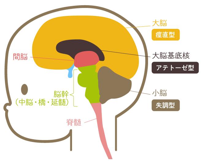 と は 麻痺 脳性