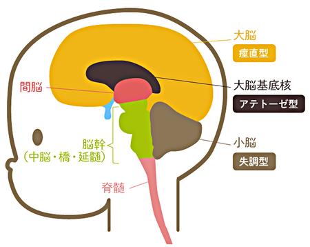 脳性麻痺とは?どんな症状なの?いつ分かるの?治療方法は ...